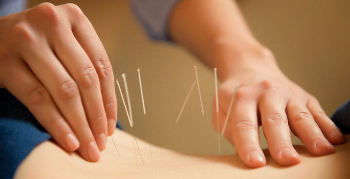 acupuncture clinic sunshine, chinese medicine melbourne